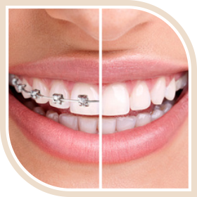 Minor Orthodontics